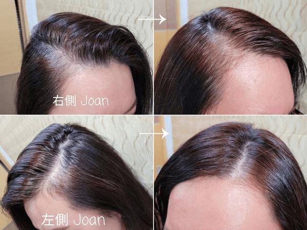使用噴噴黑前後比對圖-白髮補色