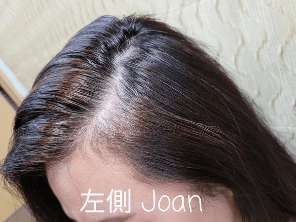 右側髮根照-白髮補色